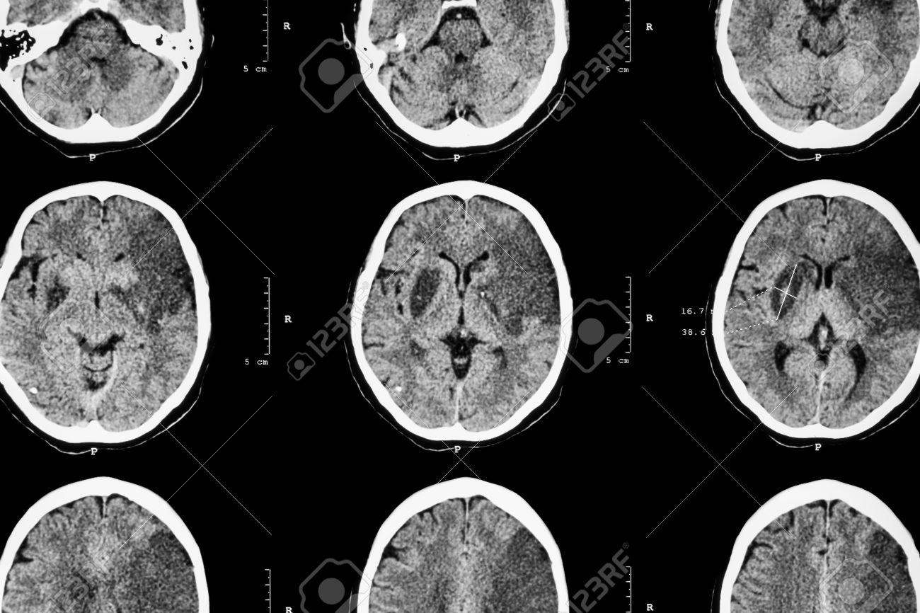 ¿Te has preguntado qué sucede cuando se produce un infarto cerebral?